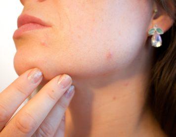 ¿Qué puede dañar mi piel?